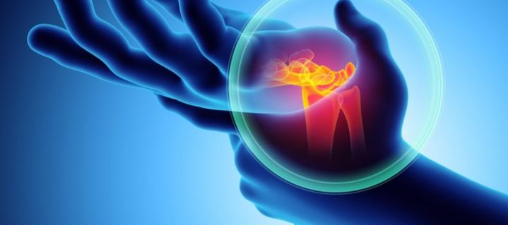 Jul - Carpal tunnel syndrome