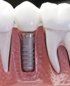 implants-vs-min