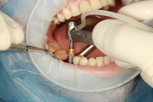 dental-3754769_640 (1)